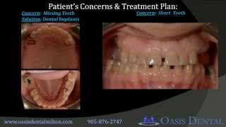 Sinus Lift, Bone Grafting, Dental Implants, Cosmetic Dentistry & Braces | Toronto, Milton Thumbnail