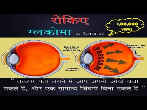 Glaucoma |पेशन्ट जानकारी और जागरूकता | Hindi | What is it, Causes, Warning Signs, Risks, Treatment??