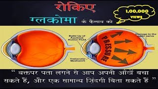 Glaucoma | पेशन्ट जानकारी और जागरूकता ~ हिन्दी | Hindi
