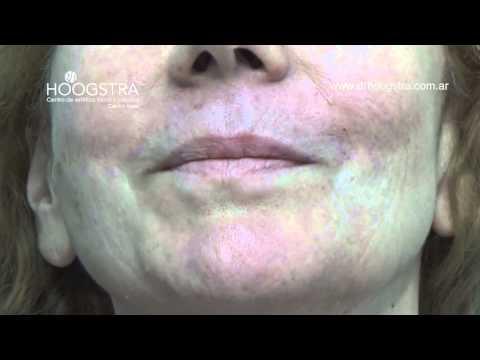 Relleno de labios y surcos nasolabiales (14108)