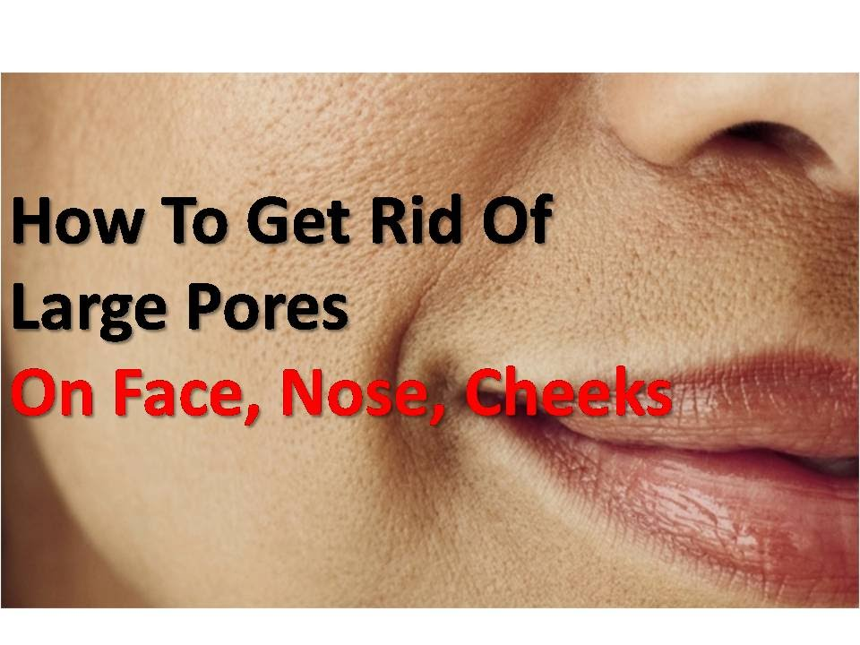 How To Get Rid Of Large Pores At Home (On Face, Nose ...