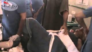 18+ 21+ Сирия: Десятки раненных и убитых детей, в результате обстрела окрестности Андан (1ч.)