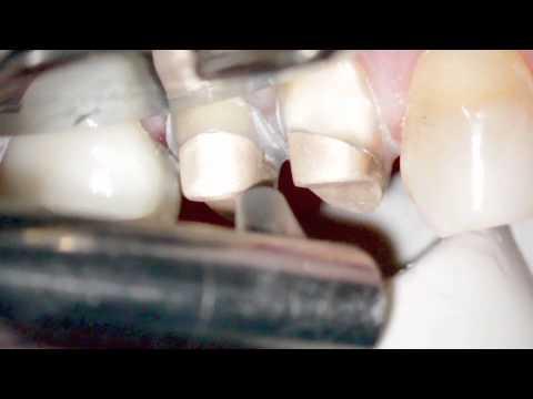 Цена коронки на зуб - от 2800 руб. Коронка на зуб цена
