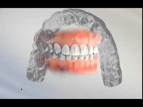 Types of orthodontic retainers