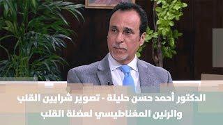 د. أحمد حسن حليلة - تصوير شرايين القلب و الرنين المغناطيسي لعضلة القلب