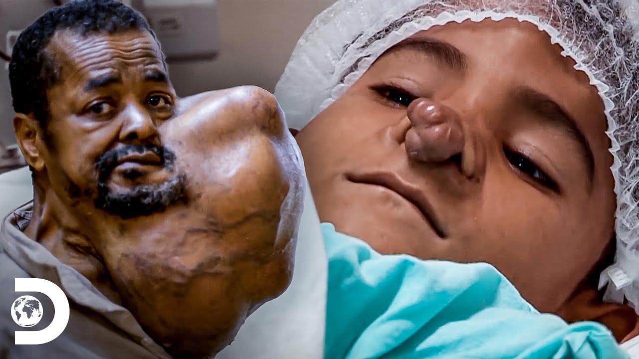 Download Bultos que conmocionaron a los médicos   Mi cuerpo, mi desafío   Discovery Latinoamérica