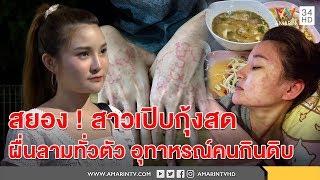 ทุบโต๊ะข่าว : สยอง!สาวเปิบกุ้งสดออกดอกทั่วตัว เปิดใจขอเป็นอุทาหรณ์คนชอบกินดิบ 25/08/60