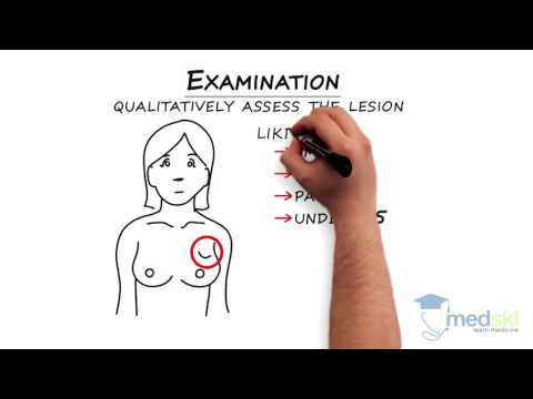 General Surgery – Breast Lump: By Ralph George M.D.
