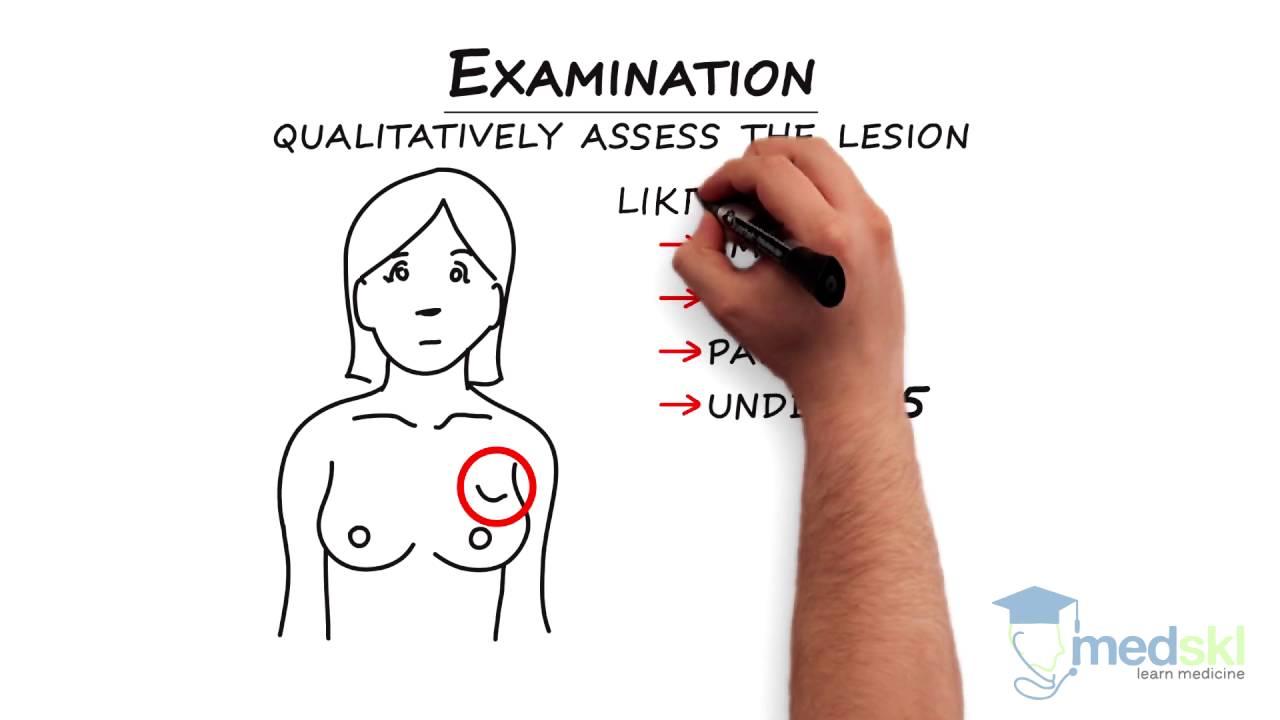 Augmentation breast las vegas