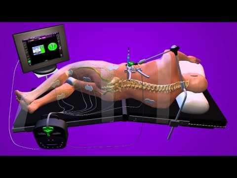 XLIF Animation - Houston Spine Center