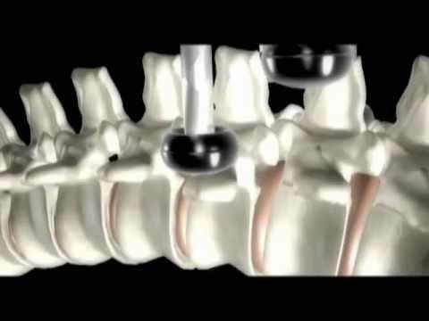 ASMI (Advanced Spinal Mobilisation Instrument)