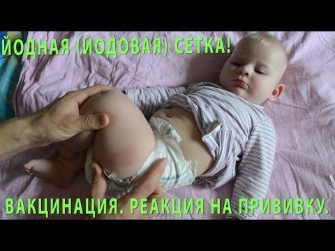 Прививка в ногу в 6 лет болит нога адс