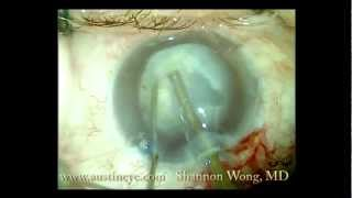 Cataract surgery with loose zonules, capsular tension ring, and vision blue 12-5-12
