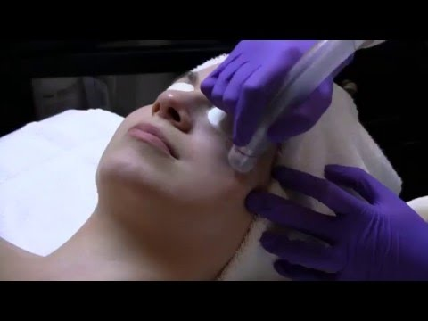 Microdermabrasion Skin Resurfacing | Moradi MD