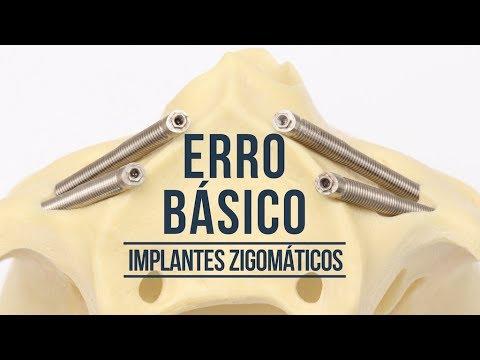 O principal erro básico dos iniciantes em IMPLANTES ZIGOMÁTICOS