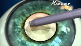 Катаракта. Лечение катаракты. Операция по удалению катаракты.(Подробнее здесь:http://tonuspremium.ru/mikroxirurgiya-glaza.html, http://tonuspremium.ru/katarakta.html, http://tonuspremium.ru/zamena-hrustalika.html, ..., 2014-07-01T13:47:49.000Z)