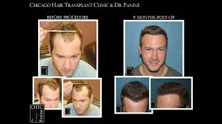 PANINE, MD - Live Video Interview with Hair Transplant Patient Discussing His Results