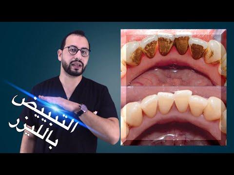 هل تبييض الاسنان بالليزر ضار ام مفيد؟ وما هي المده التي تظل فيها الاسنان بيضاء ؟  Dental Bleaching