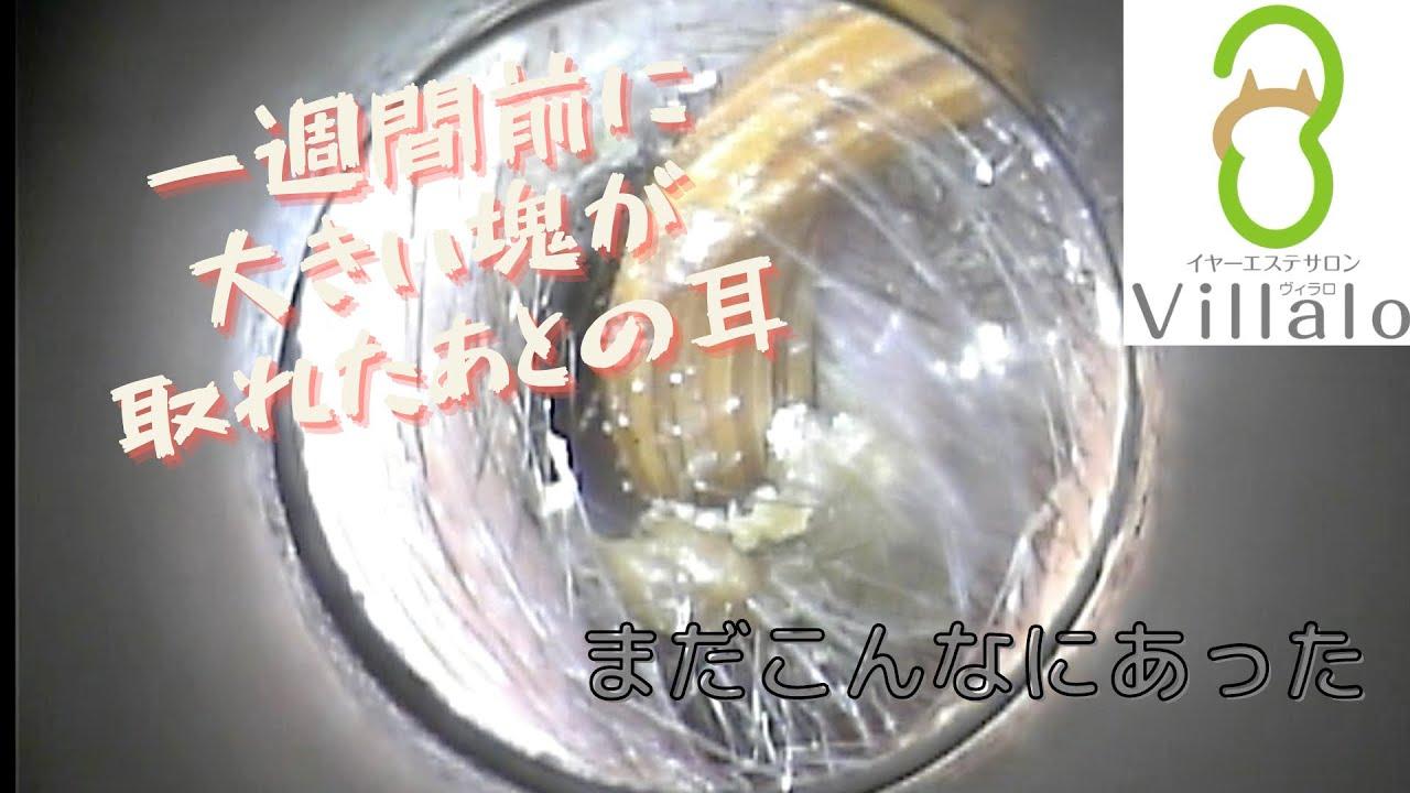 耳掃除動画vol.111「まだこんなにあった」
