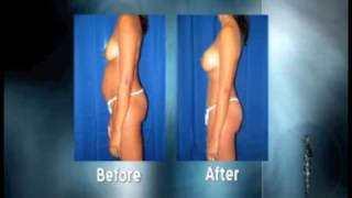 Mommy Makeover - Plastic Surgery in Hampton, Virginia Thumbnail