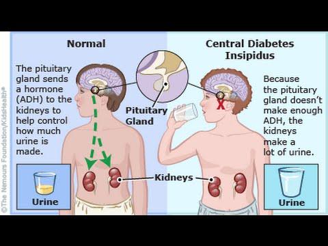 síntomas y tratamiento de la diabetes insípida