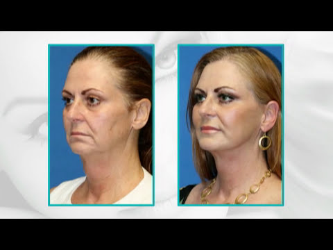 Facial Plastic Surgery Before and After : 15 Years Younger