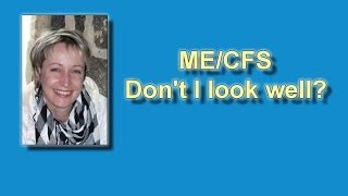 ME/CFS - Looks Are Deceiving! - ME Awareness Week May 12th-18th