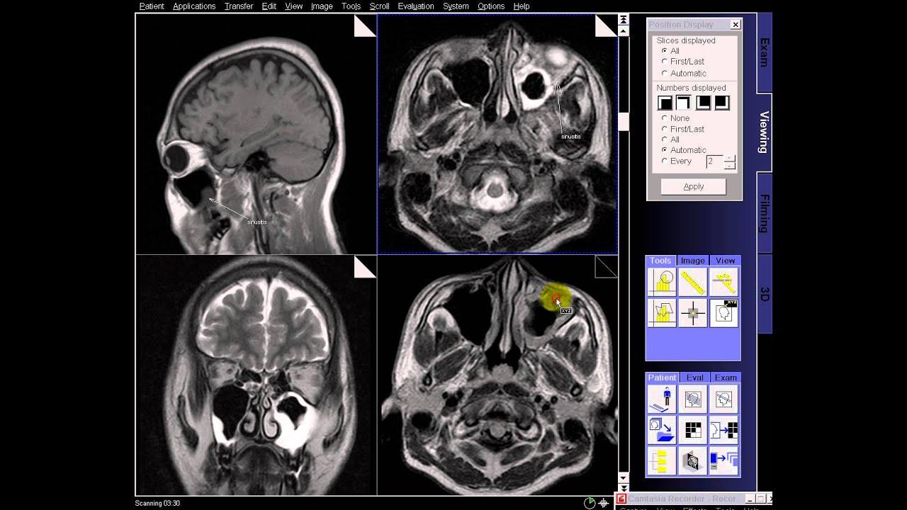 Brain Mri In Case Sinusitis Bilateral