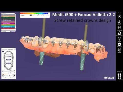 Download Intraoral Scans From Medit I500 In Exocad MP3, MKV