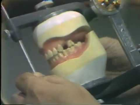 Setting Posterior 0 Versus 0 Degree Artificial Teeth