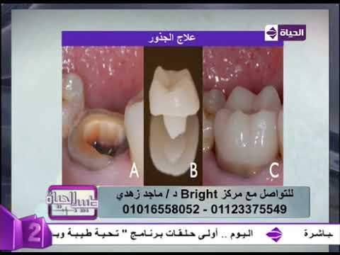 Bright Dental Center