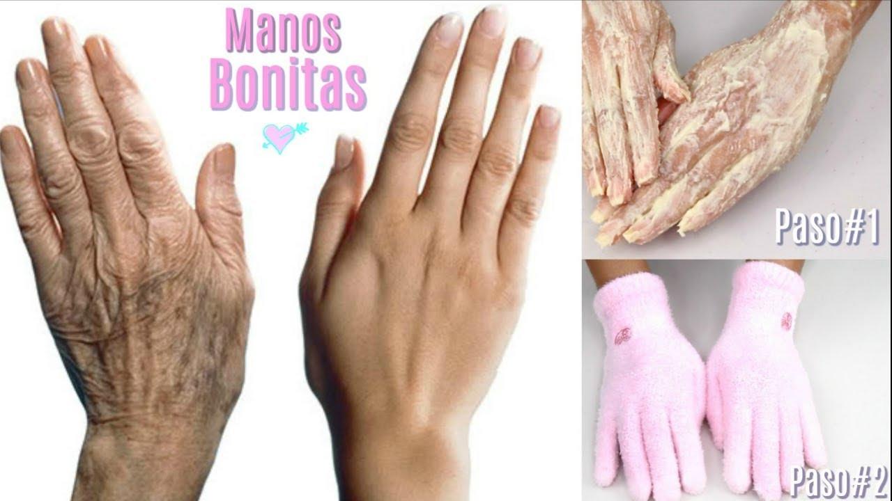 Como rejuvenecer las manos arrugadas