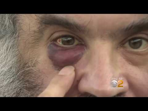 Police On Hunt After Orthodox Jewish Man Attacked In Crown Heights