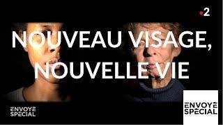Envoyé spécial. Nouveau visage, nouvelle vie - 16 mai 2019 (France 2)