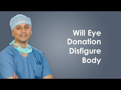 Will eye donation disfigure body?