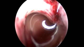 bimanual evaculation the hematoma in the thirdventricle by endoscopy(3)