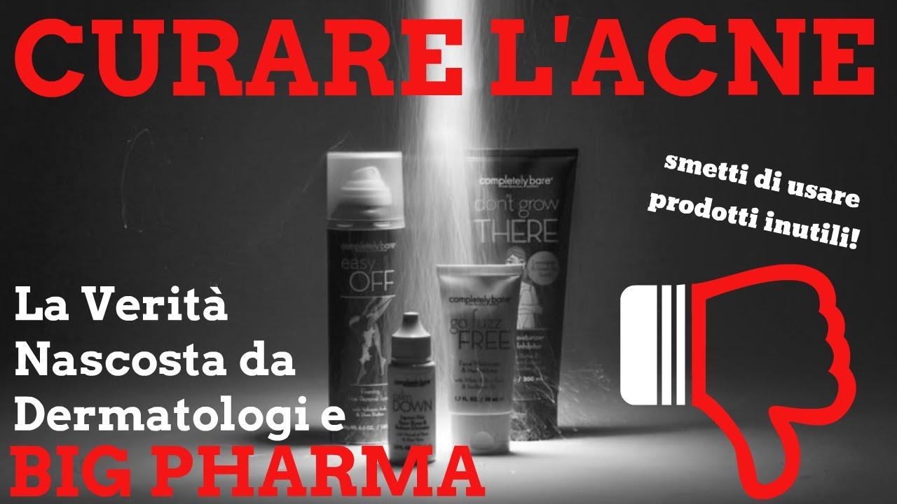 Come Curare L'Acne (SENZA CREME - ISOTRETINOINA..