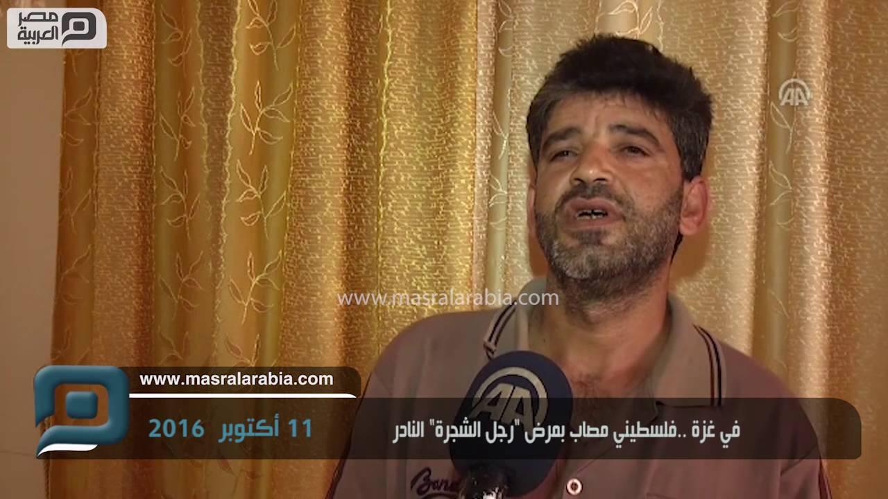 مصر العربية في غزة فلسطيني مصاب بمرض رجل الشجرة النادر