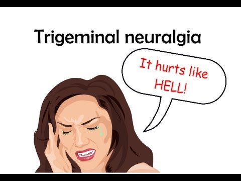 Trigeminal Neuralgia - Treatment with Gamma Knife Radiosurgery.