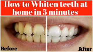 How to get whiten teeth at home in 5 mints Get white teeth instantly 100% Effective(Urdu/Hindi)