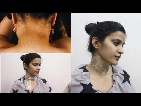 NECK WHITENING AT HOME | How to get rid of dark Neck | Super Style Tips