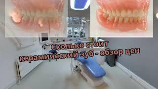 Сколько стоит керамический зуб - обзор цен