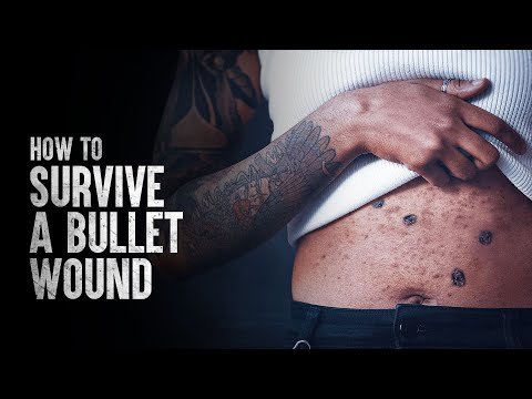 How to Survive a Bullet Wound