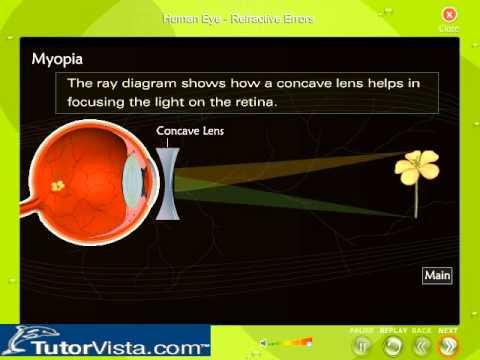 Human Eye Refractive Errors