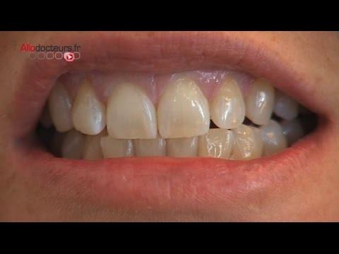 mal aux dents glossite mal à la langue