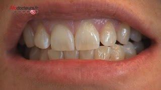 Les remèdes de grand-mères contre le mal de dents - Le Magazine de la santé