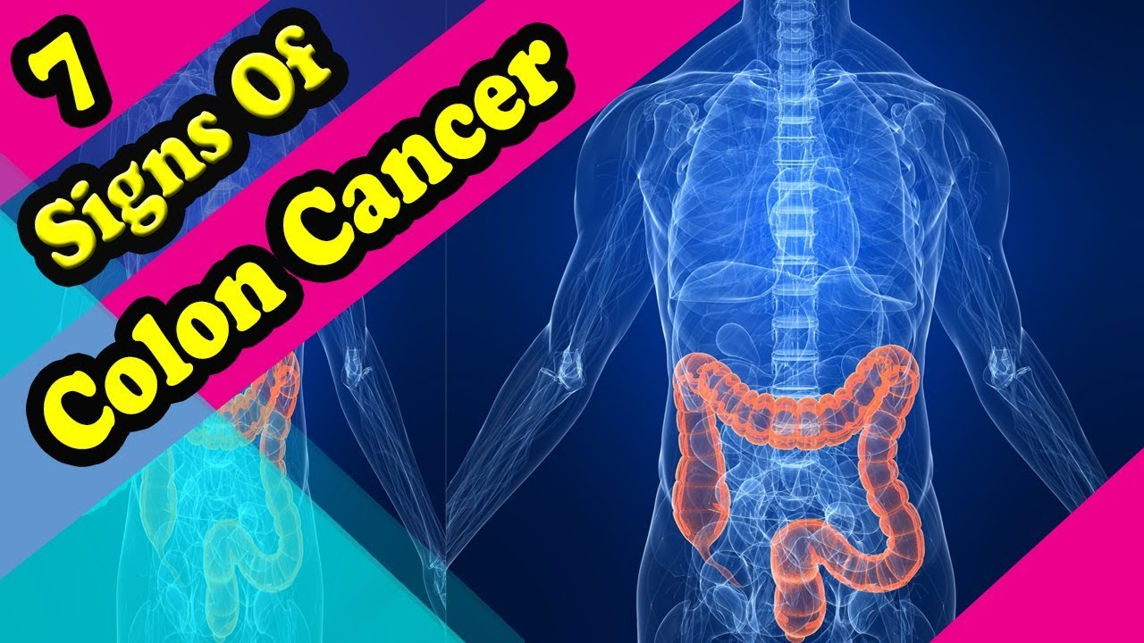 7 Signs And Symptoms Of Colon Cancer Youtube