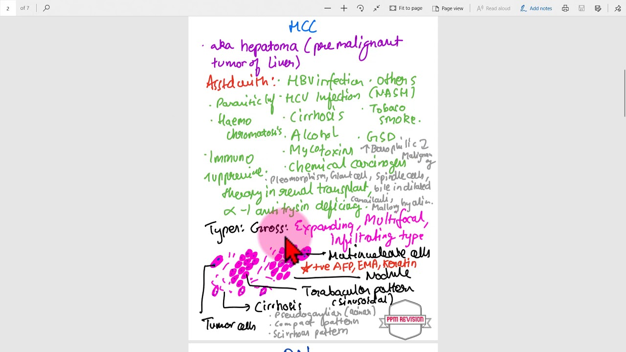 One Pager Series Pathology Hepatocellular Carcinoma Youtube