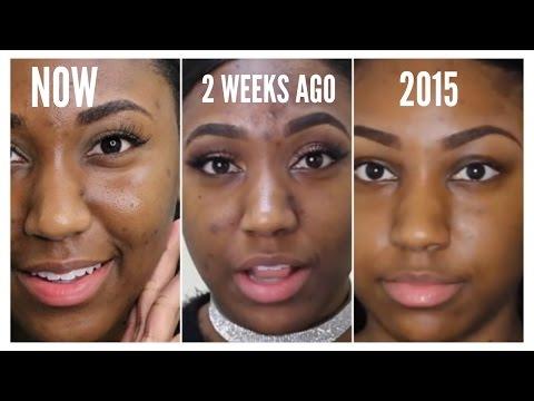 High-End Skincare on a Budget | Acne+Acne Scars| Skin Progession | Flowerpush