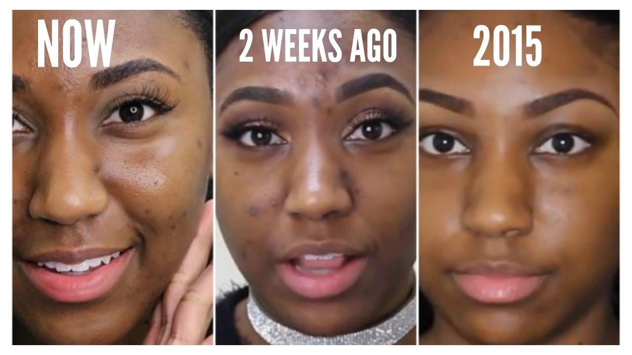 Does witch hazel clear acne scars